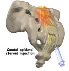 Lumbar epidural steroid injection cpt code golden dragon yonkers ave yonkers ny