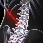 Spine care - Laser Spinal Surgery