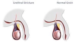 urethral stricture