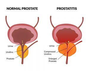 Vitafon Wikipedia Prostatitis