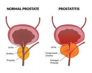 Prostatitis hasa