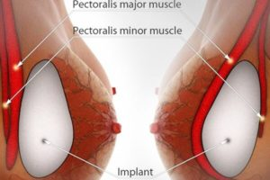 breast-augmentation-surgery1