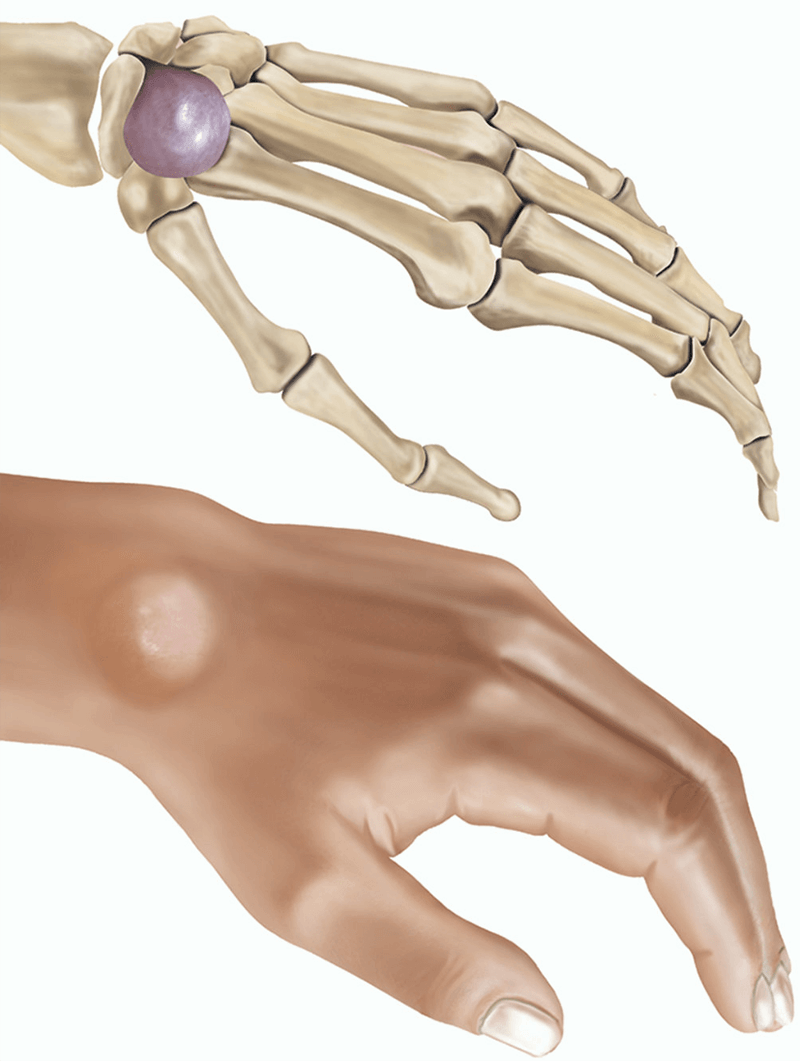 wrist ganglion