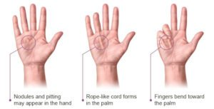 dupuytrencontracture