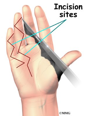 incision sites