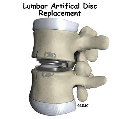 lumbar disc replacement