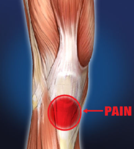 knee tendon